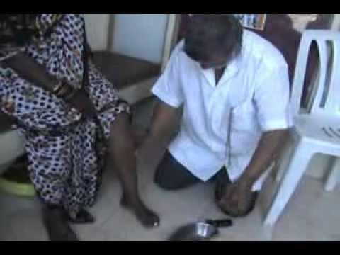 Trattamento di elettrodi prostatite