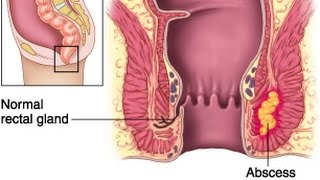 An abscess is a cavity full with pus