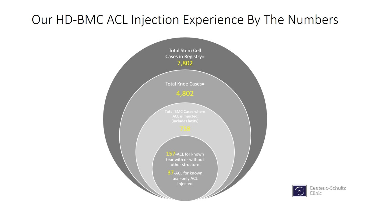 Colorado Stem Cell Therapy maxresdefault - ACL Repair Without Surgery? Yes, It's Called Perc-ACLR