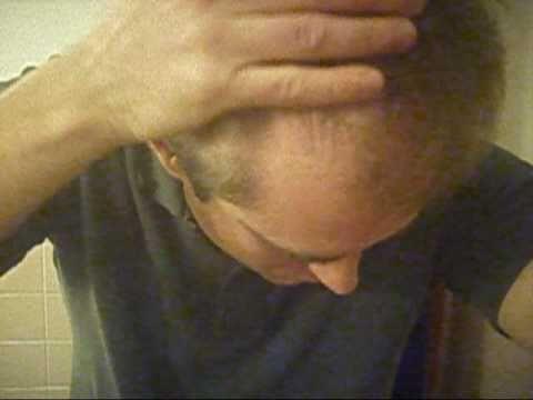Kim kardaschjan schmerzt von der Schuppenflechte