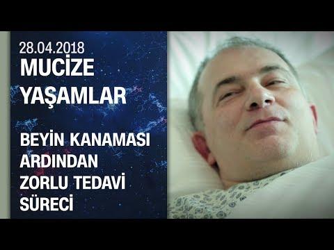 Beyin kanamasının ardından yaşam savaşı veren hastanın tedavi süreci - Mucize Yaşamlar 28.04.2018