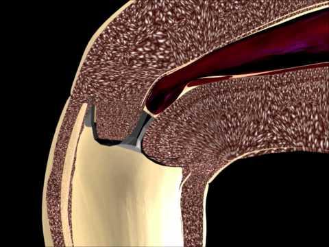 Die Behandlung gribka des Nagels mit jelenoj malyschewoj