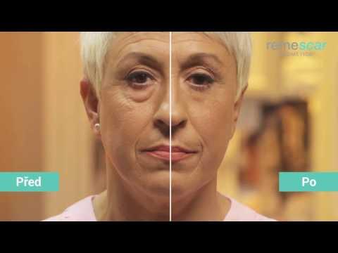 Mladý život éterických olejů proti stárnutí