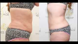 SlimLipo Laser Liposuction - Emilia