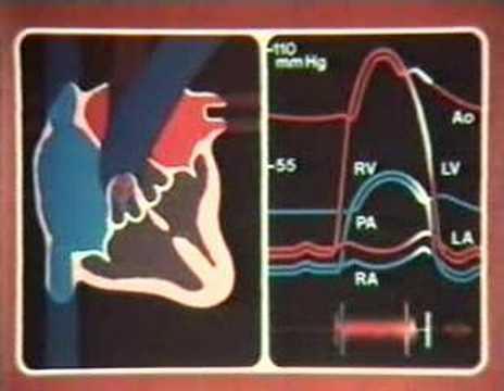 Hypertonie Grad 2 Stufe 2 Risiko 3 und die Armee