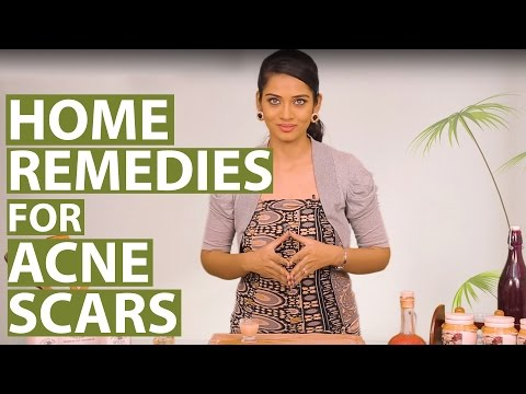 ACNE SCAR REMOVAL AT HOME   Get Rid Of Acne Scars On Face