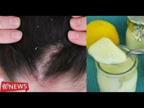Que rápidamente sanar los arañazos de las uñas sobre la espalda