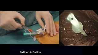 PEXACT® Gastrostomy System