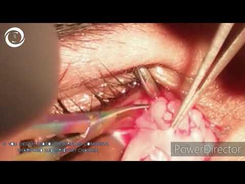 Cum se vindecă papilomele