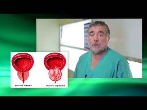Indicatori secrezione della prostata sono normali