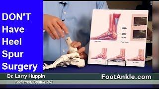 Heel Spur Treatment – How to Avoid Heel Spur Surgery | Seattle Podiatrist