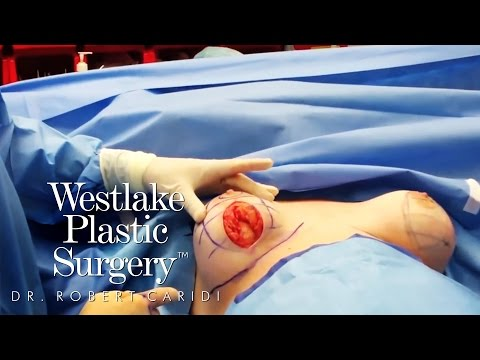 Breast surgery sa coastal rehiyon