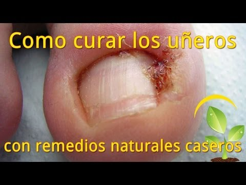 Abx el tratamiento para las uñas