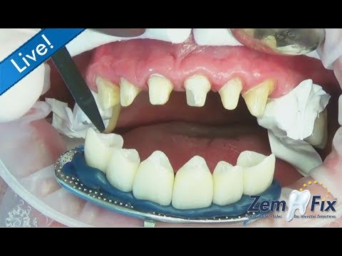 ZemFix® - inserting 6 all-ceramic zirconia crowns in the upper front