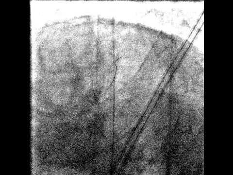Lehetséges-e megállítani a térdízület artrózisát