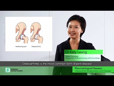 Video Rheumatological Diseases: Osteoarthritis (Degenerative Joint Disease)