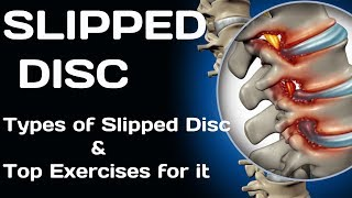 Slipped Disc Exercise | Different stages of Slipped Disc | How to Fix a Bulging Disc |