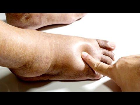 Inspecția chirurgului în varicoză