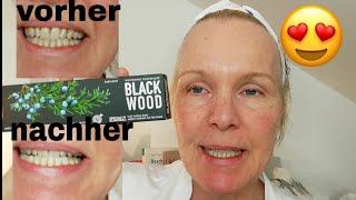 Splat Blackwood Whitening Zahnpasta im Livetest, Zähne sofort aufhellen? Aktivkohle, try on