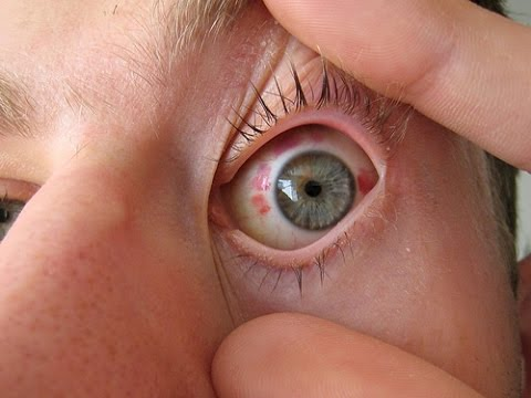 Задания о глазах и зрении
