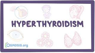 Hyperthyroidism - causes, symptoms, diagnosis, treatment, pathology