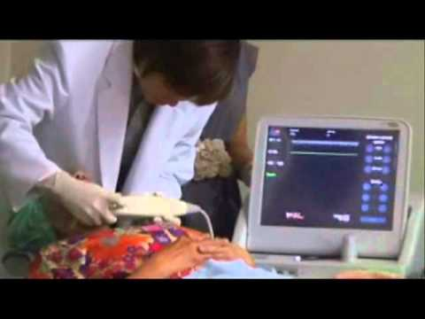 ผ่าตัดหลอดเลือดในกระดูกเชิงกรานขนาดเล็ก