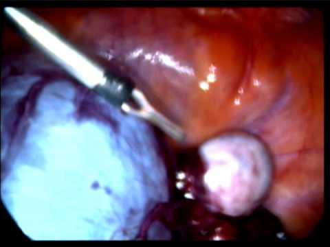 Palitan ang implants dibdib