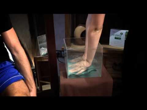 La varicosité des membres inférieurs et le traitement national