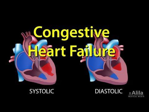 Blutdruck von 99 bis 66