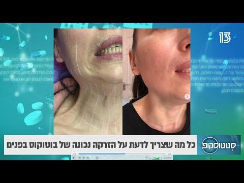 טכניקה ייחודית להזרקת בוטוקס בחלק התחתון של הפנים