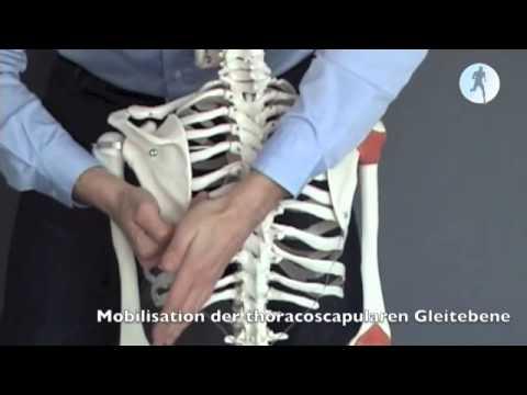 Bursitis unter dem Kniegelenk
