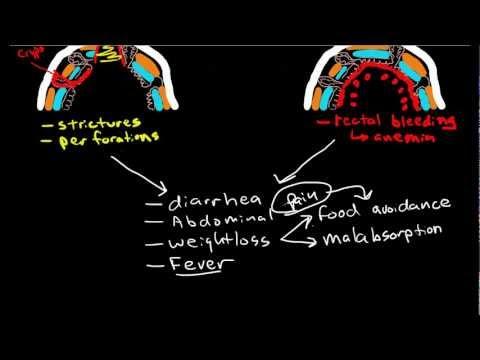Video Inflammatory Bowel Diseases: Crohns & Ulcerative Colitis