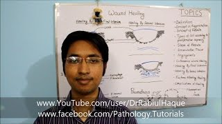 Wound Healing: Part 1 - Concept of Regeneration, Repair, Granulation Tissue & Angiogenesis (HD)