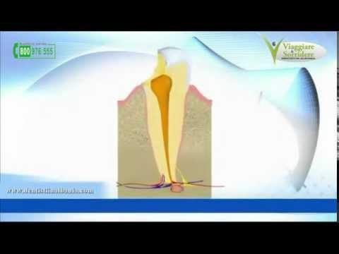 Complicazioni di eczema varicoso