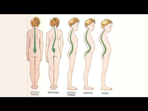 La bursitis de rodilla suprapatellyarny de las revisiones conjuntas