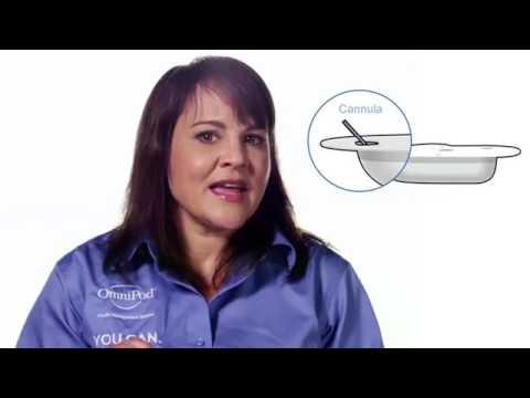Классификация диабетической нефропатии