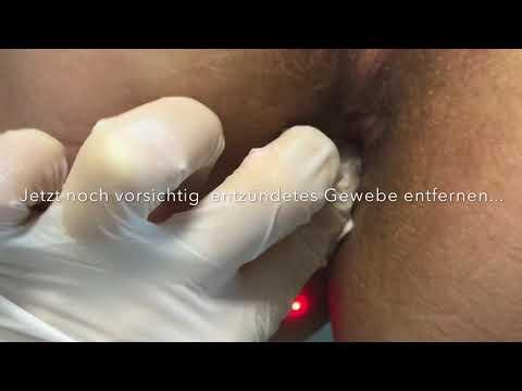 Aniston Sex-Video