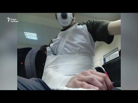 Полицейский сломал плечо журналисту на участке для голосования