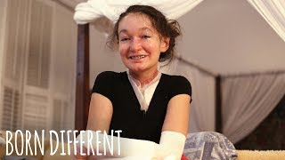 The Teenager With Butterfly Skin | BORN DIFFERENT