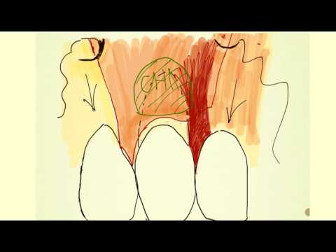 Практикум по пластике мягких тканей десны в области зубов и имплантатов. Часть 8