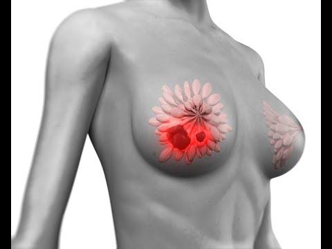 Проблемы с щитовидной железой у женщин и истинные причины мастопатии, рака груди и миом.