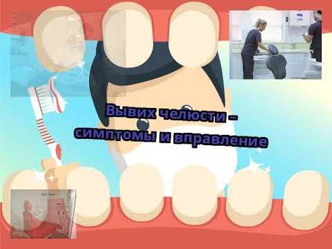Вывих челюсти – симптомы и вправление