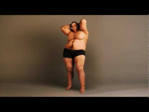 Galvos svaigimas nuovargis svorio netekimas simptomai