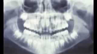 Hyperdontia, Supernumerary Teeth, Mesiodens, Effects on Eruption; Clinical Pediatric Dentistry.