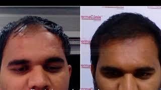 Hair Transplant Before After Photos @ DermaClinix Chennai   Dr. Ariganesh Chandrasegaran