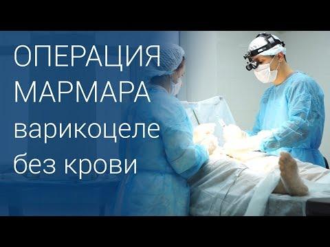 Операция Мармара при варикоцеле 18+