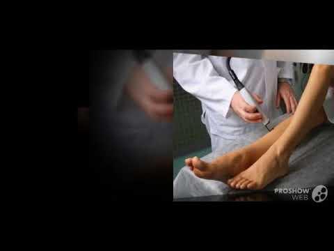 ретикулярный варикоз нижних конечностей лечение