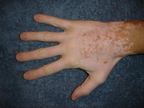 Das Institut der Dermatologie die Behandlung der Schuppenflechte