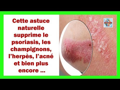Le psoriasis le traitement la médecine nationale solidol