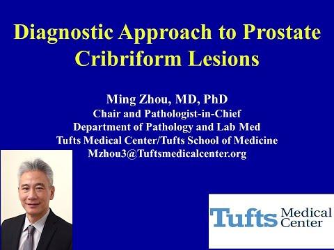Prostatitis kezelés alatt